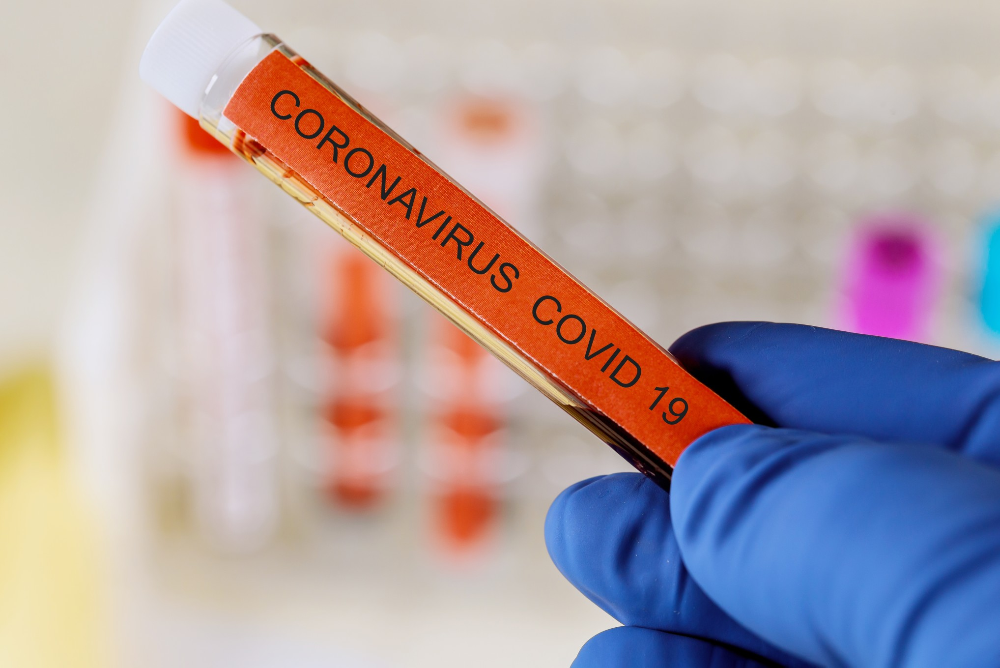 tube-infected-blood-sample-in-hand-with-coronavirus-covid-19_t20_e9YX0W